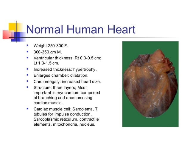 Normal Human Heart   Weight 250-300 F.   300-350 gm M.   Ventricular thickness: Rt 0.3-0.5 cm;    Lt 1.3-1.5 cm.   Inc...