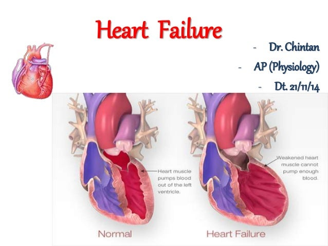 how to live with congestive heart failure