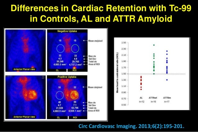 Heart Failure With Preserved Lvef And Senile Amyloidosis