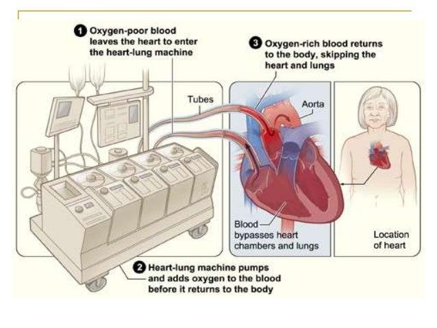 heartlung machine