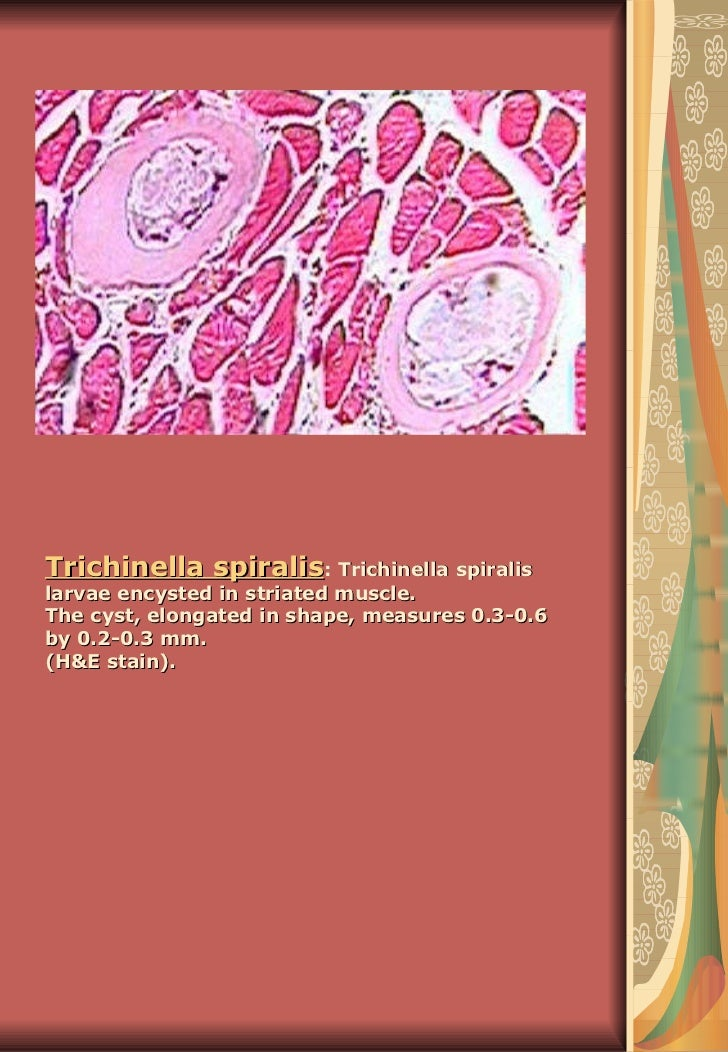 Trichinella spiralis : Trichinella spiralis larvae encysted in striated muscle.  The cyst, elongated in shape, measures 0....
