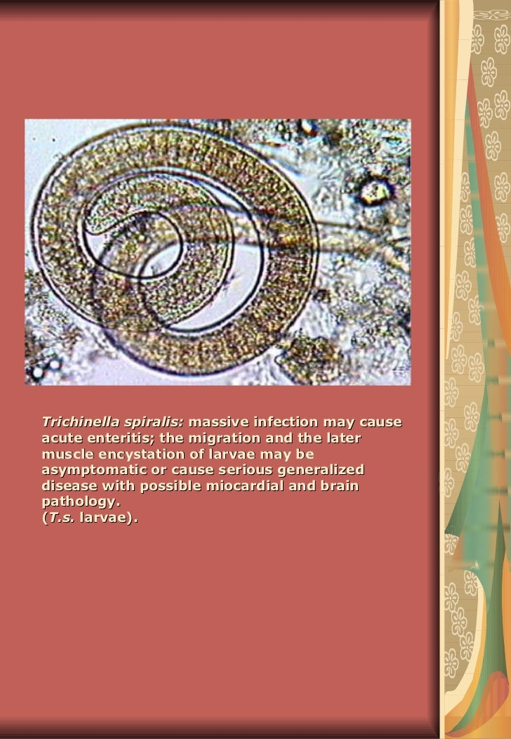 Trichinella spiralis:  massive infection may cause acute enteritis; the migration and the later muscle encystation of larv...