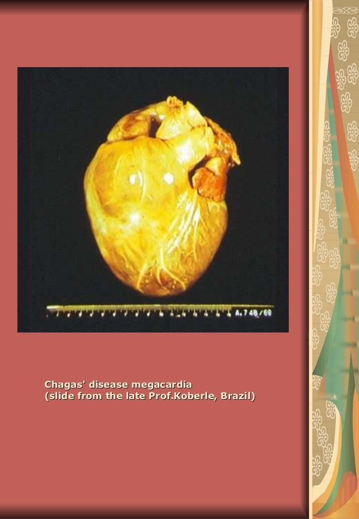 Chagas' disease megacardia (slide from the late Prof.Koberle, Brazil)