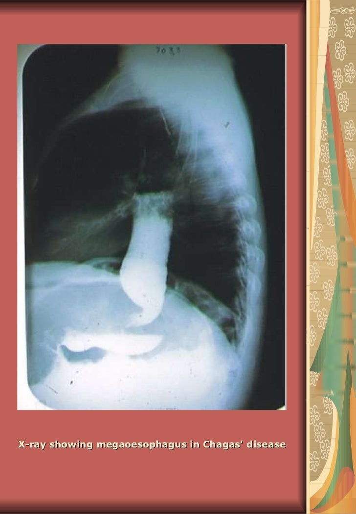 X-ray showing megaoesophagus in Chagas' disease