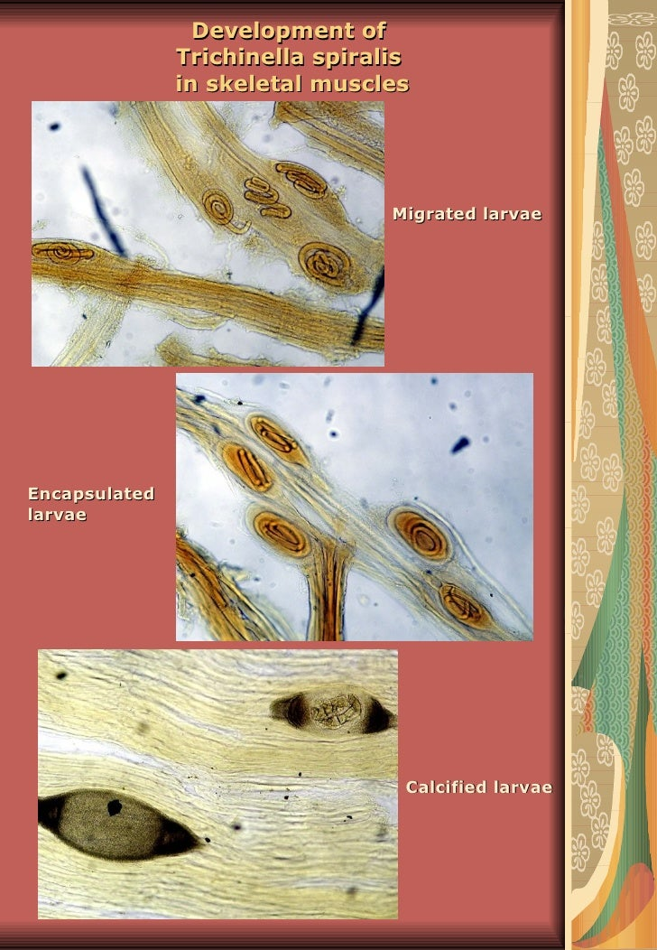 Development of               Trichinella spiralis               in skeletal muscles                                 Migrat...