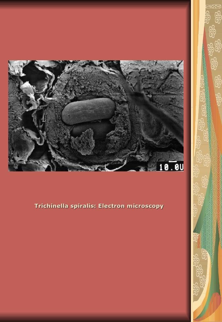 Trichinella spiralis: Electron microscopy