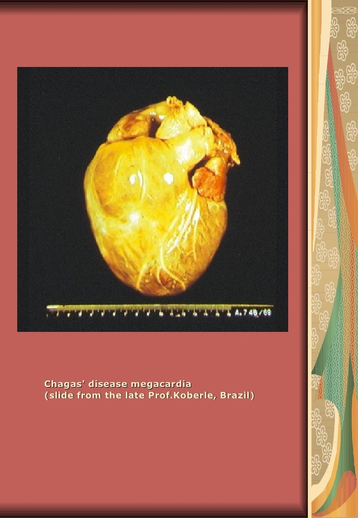 Chagas disease megacardia(slide from the late Prof.Koberle, Brazil)