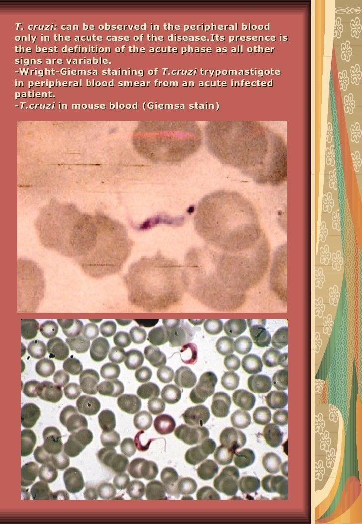 T. cruzi: can be observed in the peripheral bloodonly in the acute case of the disease.Its presence isthe best definition ...