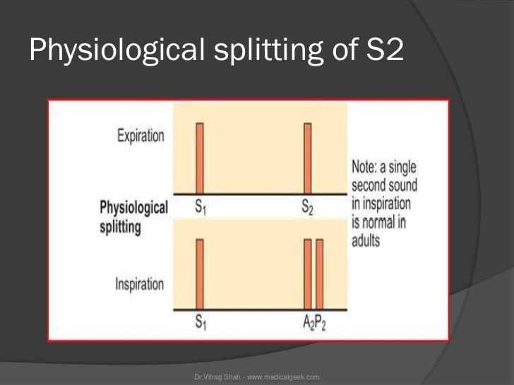 Physiological splitting of S2            Dr.Vitrag Shah - www.medicalgeek.com