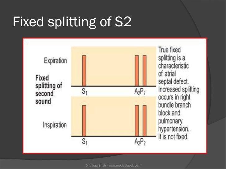 Fixed splitting of S2            Dr.Vitrag Shah - www.medicalgeek.com