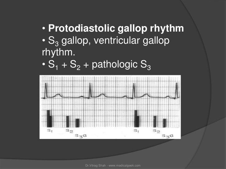 • Protodiastolic gallop rhythm• S3 gallop, ventricular galloprhythm.• S1 + S2 + pathologic S3         Dr.Vitrag Shah - www...
