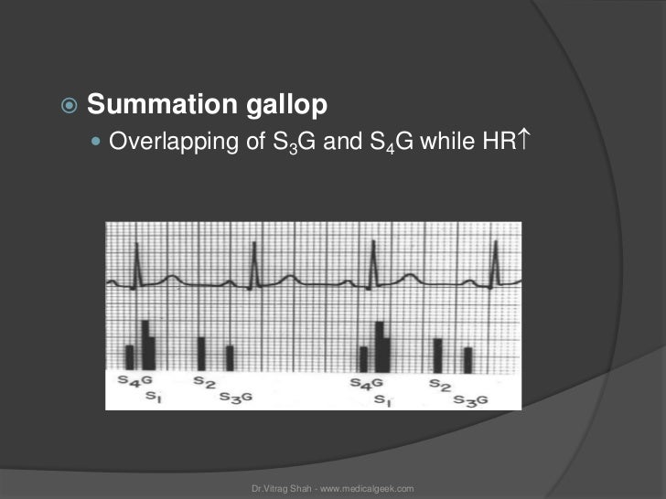    Summation gallop     Overlapping of S3G and S4G while HR                 Dr.Vitrag Shah - www.medicalgeek.com
