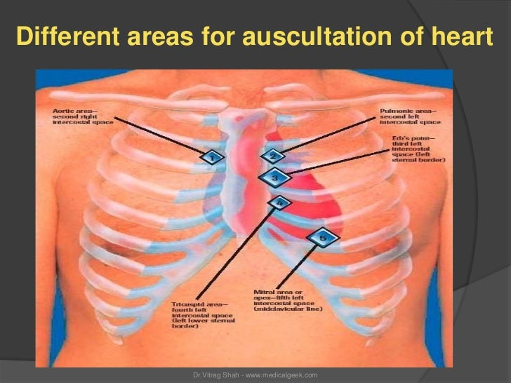 Different areas for auscultation of heart               Dr.Vitrag Shah - www.medicalgeek.com
