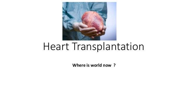 Heart Transplantation Where is world now ?