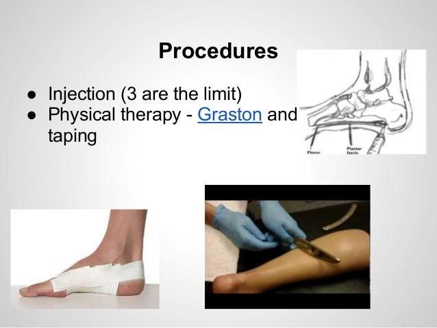 Heel Pain Plantar Fasciitis Treatment Protocol
