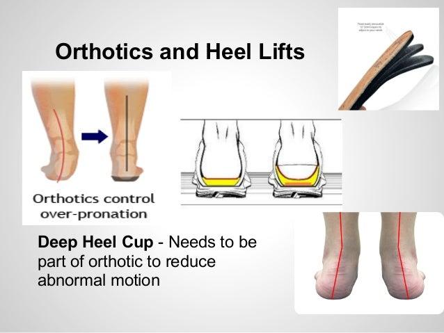Heel Pain (Plantar Fasciitis) Treatment