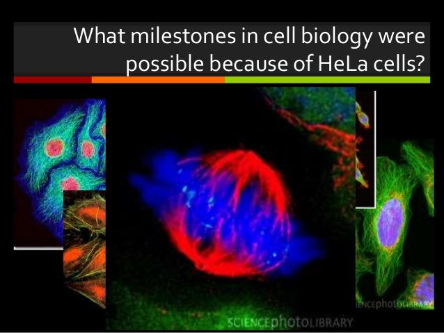a study of the hela cells The hardiness of these cells was noted early in the medical literature, resulting in numerous requests by other laboratories and research institutions for samples that could be cultured as such, hela cells were disseminated around the world and became the basis for numerous medical studies that have benefited.