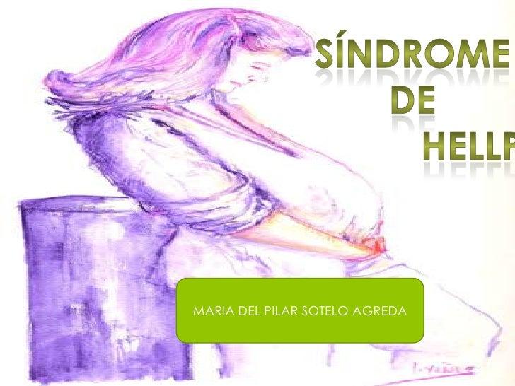 Síndrome<br /> de <br />hellp<br />MARIA DEL PILAR SOTELO AGREDA<br />
