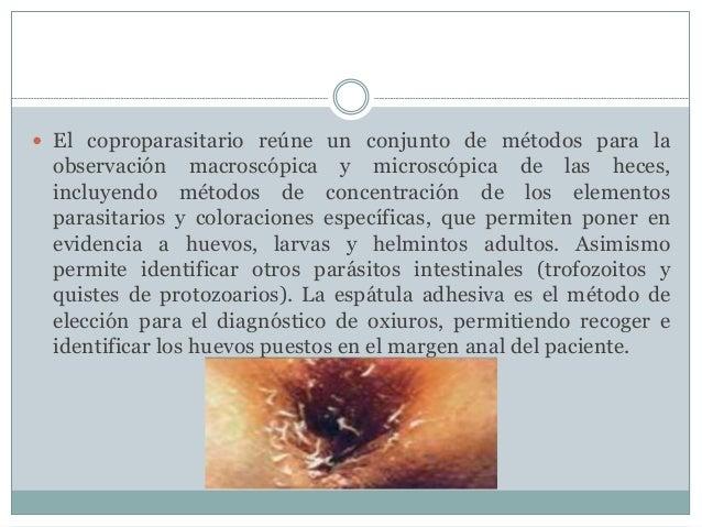TRATAMIENTO   Para los nematelmintos es necesario el tratamiento con  antiparasitarios por vía oral  (mebendazol, albenda...