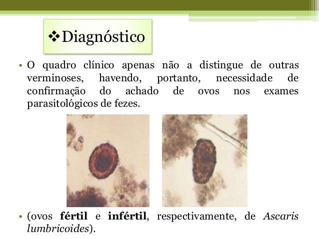 Os parasitas comem para nós