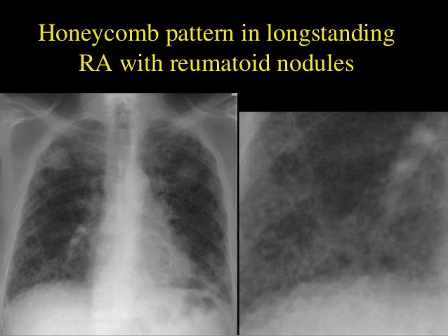 Interstitial Lung Disease X Ray Helpful radiological s...