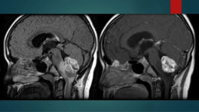 Hemangioblastoma, Ependimoma y Papiloma de Plexo Coroides
