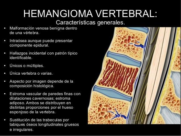 El tratamiento eficaz a las hernias de la columna vertebral