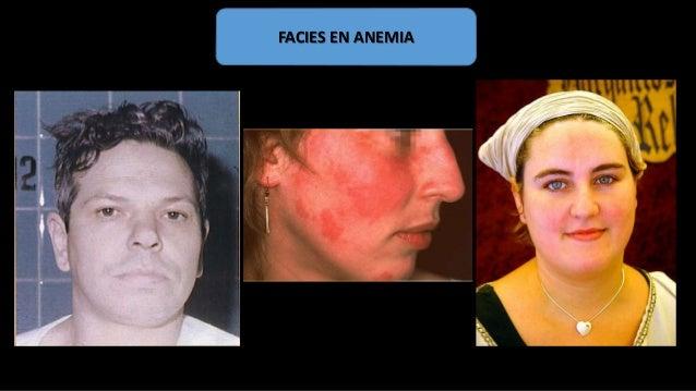 HEMOPATIA HEMORRAGICA HEMOBLASTOSIS AGUDA AGRANULOMATOSIS PANCITOPENIA