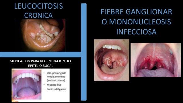 Hematologia semiologia suros