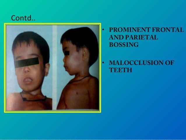 Hematology PPT- anemia, thalasemia, sickle cell anemia
