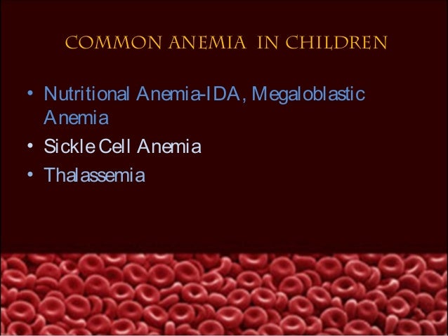 IRON DEFICIENCY ANEMIA• It Is A Type Of Microcytic Hypo ChromicAnaemia Results From Inadequate SupplyOf Dietary Iron In Th...