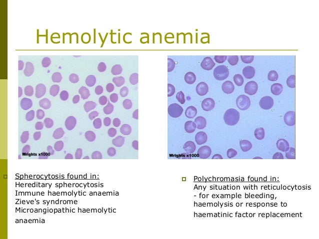 The Clinical Pictures of Autoimmune Hemolytic Anemia