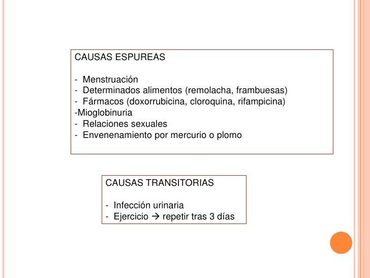 Hematuria Microscópica