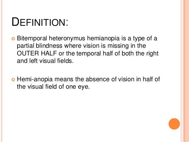Bitemporal Heteronymous Hemianopia
