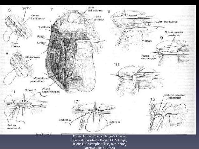 Hemicolectomia