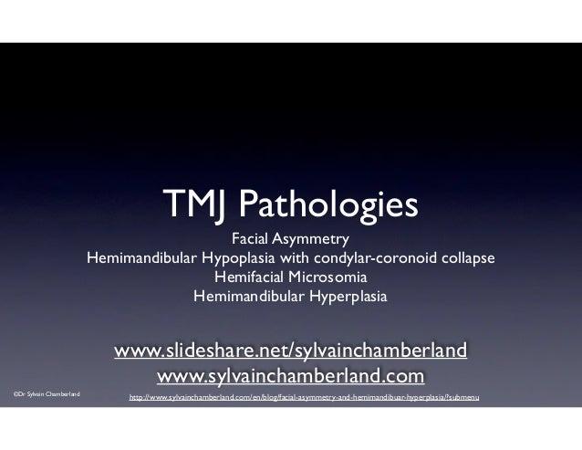TMJ Pathologies Facial Asymmetry  Hemimandibular Hypoplasia with condylar-coronoid collapse  Hemifacial Microsomia  Hem...