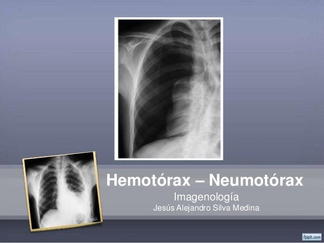 Hemotórax – Neumotórax Imagenología Jesús Alejandro Silva Medina