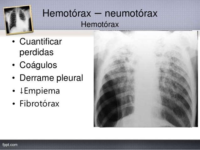 Hemotórax – neumotórax Hemotórax • Cuantificar perdidas • Coágulos • Derrame pleural • ↓Empiema • Fibrotórax