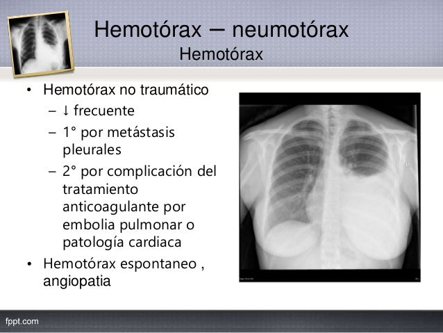 Hemotórax – neumotórax Hemotórax • Hemotórax no traumático – ↓ frecuente – 1° por metástasis pleurales – 2° por complicaci...