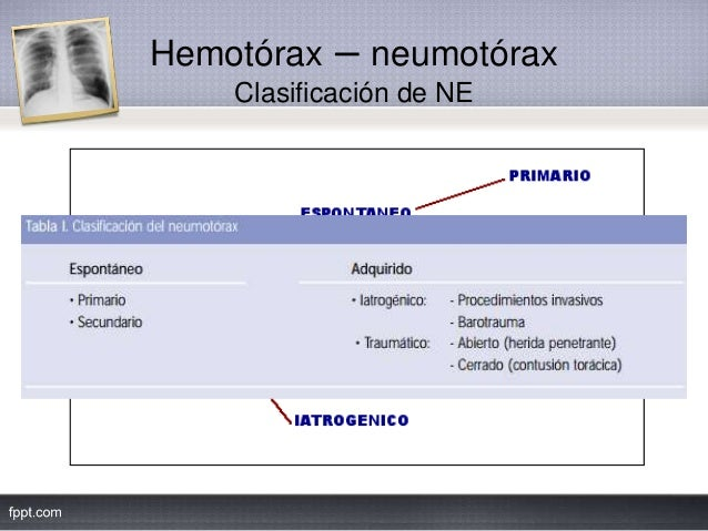 Hemotórax – neumotórax Clasificación de NE