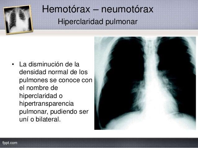 Hemotórax – neumotórax Hiperclaridad pulmonar • La disminución de la densidad normal de los pulmones se conoce con el nomb...