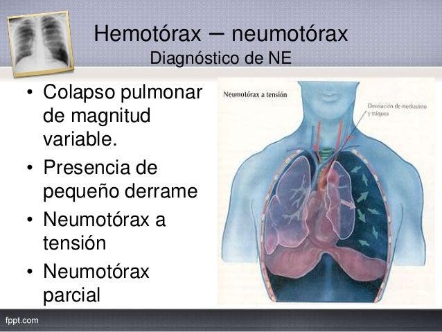 Hemotórax – neumotórax Diagnóstico de NE • Colapso pulmonar de magnitud variable. • Presencia de pequeño derrame • Neumotó...