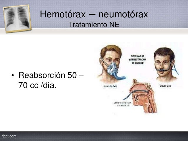 Hemotórax – neumotórax Tratamiento NE • Reabsorción 50 – 70 cc /día.