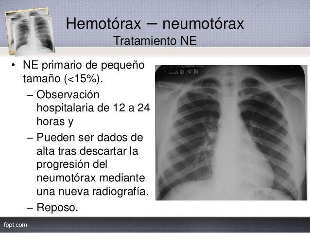 Hemotórax – neumotórax Tratamiento NE • NE primario de pequeño tamaño (<15%). – Observación hospitalaria de 12 a 24 horas ...