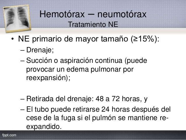 Hemotórax – neumotórax Tratamiento NE • NE primario de mayor tamaño (≥15%): – Drenaje; – Succión o aspiración continua (pu...