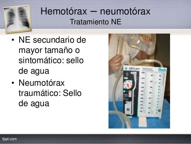 Hemotórax – neumotórax Tratamiento NE • NE secundario de mayor tamaño o sintomático: sello de agua • Neumotórax traumático...