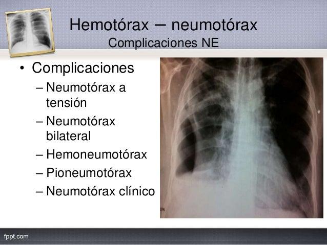 Hemotórax – neumotórax Complicaciones NE • Complicaciones – Neumotórax a tensión – Neumotórax bilateral – Hemoneumotórax –...