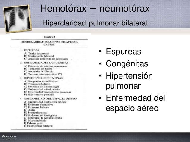 Hemotórax – neumotórax Hiperclaridad pulmonar bilateral • Espureas • Congénitas • Hipertensión pulmonar • Enfermedad del e...