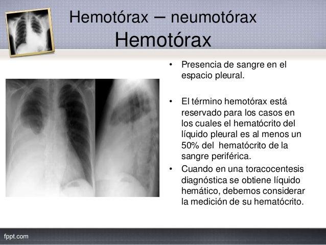 Hemotórax – neumotórax Hemotórax • Presencia de sangre en el espacio pleural. • El término hemotórax está reservado para l...