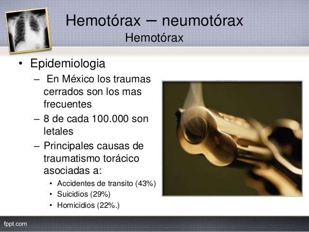 Hemotórax – neumotórax Hemotórax • Epidemiologia – En México los traumas cerrados son los mas frecuentes – 8 de cada 100.0...